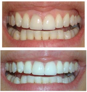 teeth-whiten-teeth-crest-white-strips-before-after