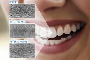 Visual-Remineralization-Multi-Oral-Remin
